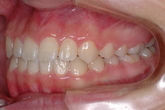 下顎前突傾向をともなう開咬症例