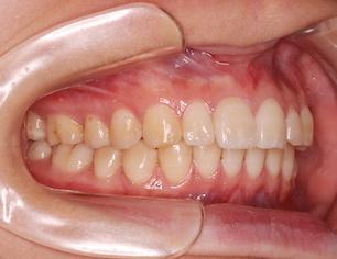 重篤な骨格性上顎前突症の治療例。