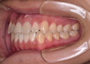 非抜歯にて治療を行った叢生をともなう反対咬合症例