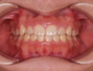 非抜歯にて矯正治療を行った叢生(ガタガタの歯並び)症例。
