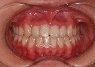 非抜歯にて治療を行った叢生(ガタガタの歯並び)症例