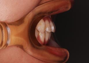 顎変形症 〜外科的矯正治療例〜 (下顎前突症)