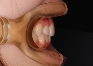 小臼歯抜歯にて治療を行った上顎前突症例。