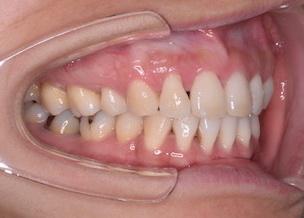 リンガルブラケットにて治療を行った上下顎前突症例。