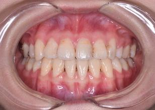 上下顎前歯のリトラクションを行って治療した開咬症例。