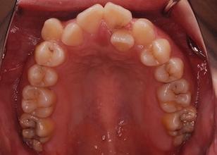 上下顎歯列に重度の叢生を認める上下顎前突症例。