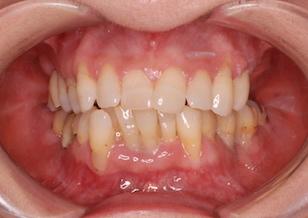 歯周病に起因して欠損歯を有する叢生症例