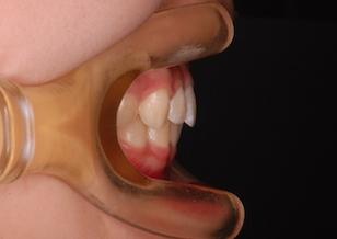ヘッドギアによる上顎骨の成長コントロール治療で治癒した上顎前突症例。