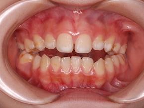 先天欠如歯4歯と埋伏歯1歯を認める開咬症例。
