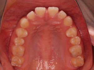 先天欠如歯をともなう上下顎歯列のスペースアーチ(隙っ歯)症例