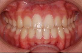 上下顎歯列に叢生を認める上下顎前突症例。