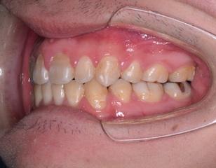 小臼歯抜歯にて治療を行った開咬をともなった上顎前突症例。