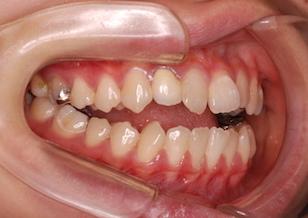 非抜歯にて治療を行った成人の重篤な開咬症例。