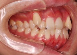 上下顎歯列に重度の叢生を認める症例。