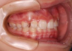 ペンデュラムアプライアンスにて大臼歯後方移動を行って、非抜歯にて矯正治療を行った叢生症例。