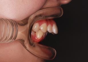 リンガルブラケットを用いて治療を行った骨格性上顎前突症例。