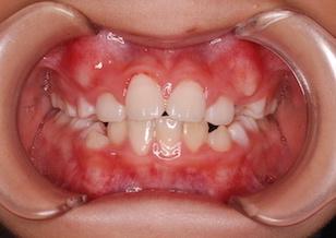 小臼歯非抜歯にて治療を行った叢生(ガタガタの歯並び)症例。