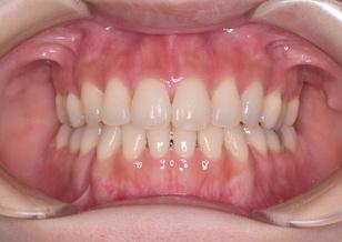 リンガルブラケットにて治療を行った開咬・上顎前突症例。