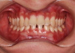 先天欠如歯をともなう上顎前突症例。
