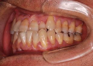 叢生(ガタガタの歯並び)をともなう前歯部反対咬合症例。
