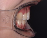 叢生をともなった上下顎前突症例。