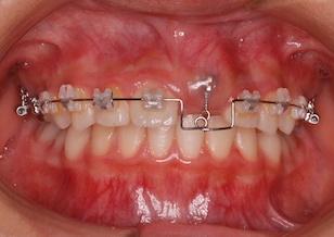 埋伏歯(上顎中切歯)の開窓・牽引治療例。