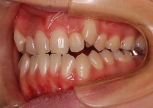 左右側方歯部の開咬症例。