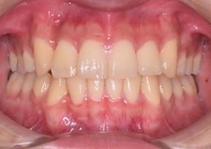 上顎小臼歯抜歯にて治療を行なった叢生症例。