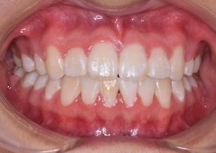 上顎前歯部に埋伏過剰歯を認めた叢生症例。