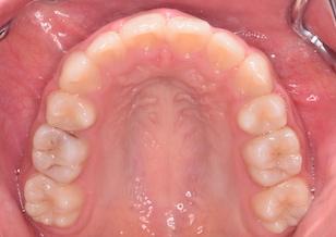 小臼歯便宜抜歯にて治療を行なった叢生症例。