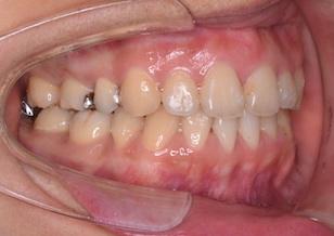 成人の叢生をともなう上下顎前突症例。