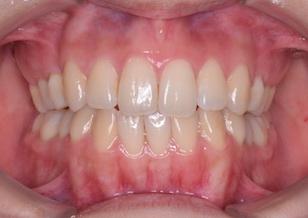先天欠如歯をともなった開咬症例。