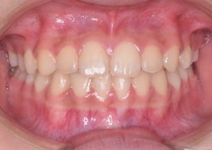 成長発育期の上顎歯列に叢生をともなう反対咬合。