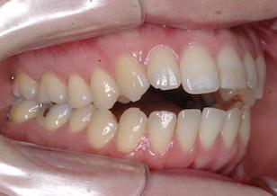 非抜歯にて矯正治療を行なった重度の開咬症例。