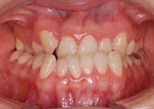 〜外科的矯正治療〜 叢生をともなう下顎前突症。