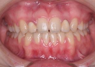 非抜歯にて治療を行なった成人の骨格性開咬症。