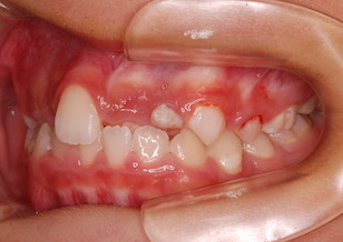 上顎前歯部に叢生(ガタガタの歯並び)をともなう反対咬合症例。
