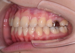 叢生をともなう骨格性上顎前突症例。