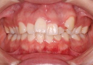 先天欠如歯を認める叢生症例