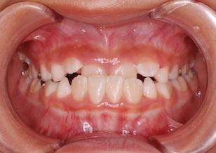 成長発育期の骨格性反対咬合(下顎前突症)