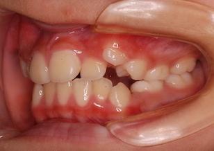 混合歯列期より矯正治療を開始した叢生症例。