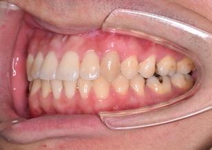 外科的矯正治療を行った骨格性下顎前突症。