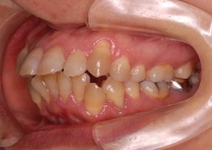 上下顎前歯部に叢生(ガタガタの歯並び)をともなう上下顎前突症例。