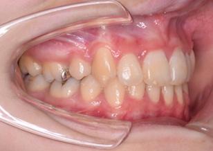 リンガルブラケットを用いて治療を行った上下顎前歯部に叢生をともなう上顎前突症例。