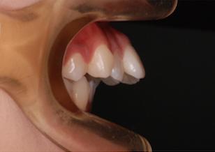 上顎第1小臼歯便宜抜歯にて治療を行なった重度の骨格性上顎前突症例。