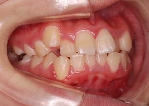 小臼歯便宜抜歯にて治療を行なった叢生(ガタガタの歯並び)症例。