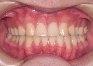 上顎前歯部に先天欠如歯を認めるスペースアーチ(隙っ歯)症例。