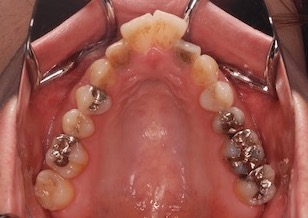 前歯部に叢生をともなう成人の上顎前突症例。