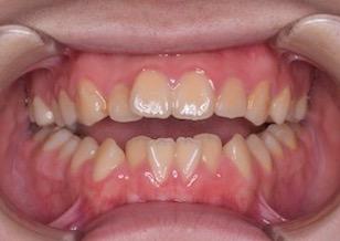第2大臼歯のみが咬合している重度の開咬症例