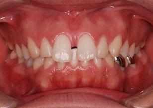 過蓋咬合をともなう上顎歯列のスペースアーチ(隙っ歯)症例。